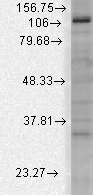 Western blot - Anti-KCNU1 antibody [N2/16] (ab94586)