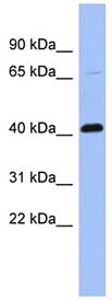 Western blot - Anti-Properdin antibody (ab94597)
