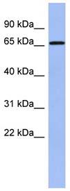 Western blot - Anti-A1CF antibody (ab94598)