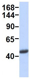 Western blot - Anti-HCF-1 / Host Cell Factor C1 antibody (ab94631)
