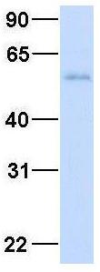 Western blot - Anti-RBM47 antibody (ab94638)