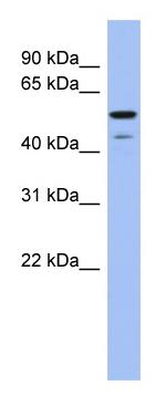 Western blot - Anti-BMP6 antibody (ab94639)
