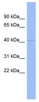 Western blot - Anti-RG9MTD1 antibody (ab94643)
