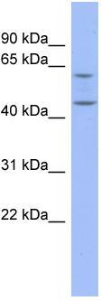 Western blot - Anti-Pentraxin 3 antibody (ab94649)