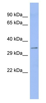 Western blot - Anti-Aspartate beta hydroxylase antibody (ab94660)