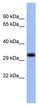 Western blot - Anti-USF1 antibody (ab94661)