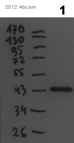 Western blot - Anti-MLC1  antibody (ab94730)
