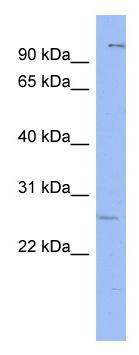 Western blot - Anti-Gsh1 antibody (ab94733)