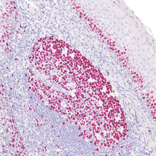 Anti-EXPOSE Mouse and Rabbit Specific AP (red) Detection IHC Kit