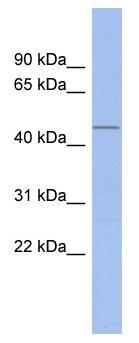 Western blot - Sp7 / Osterix antibody (ab94744)