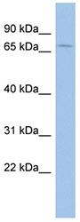 Western blot - Anti-ACCN2 antibody (ab94753)