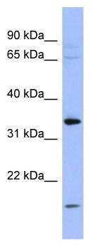 Western blot - PYCR1 antibody (ab94780)