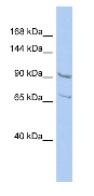 Western blot - Anti-RALGDS antibody (ab94786)