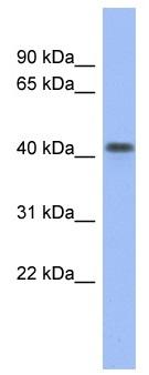 Western blot - Anti-FIZ1 antibody (ab94840)