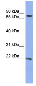 Western blot - Anti-ZNF530 antibody (ab94850)