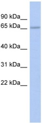 Western blot - Anti-ZNF248 antibody (ab94852)