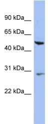 Western blot - Anti-KRT75 antibody (ab94853)