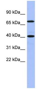 Western blot - Anti-SLAIN2 antibody (ab94863)