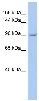 Western blot - Anti-TRPV4 antibody (ab94868)
