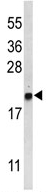 Western blot - Anti-GABARAPL1 antibody (ab94996)