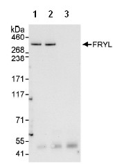 Immunoprecipitation - Anti-FRYL antibody (ab95011)