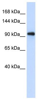 Western blot - Anti-EXOSC10 antibody (ab95028)
