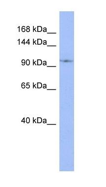 Western blot - Anti-DDX26B antibody (ab95083)
