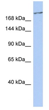 Western blot - Anti-CACNA1G + CACNA1H antibody (ab95092)