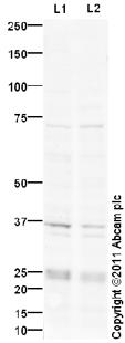 Western blot - Anti-Cathepsin L antibody (ab95154)