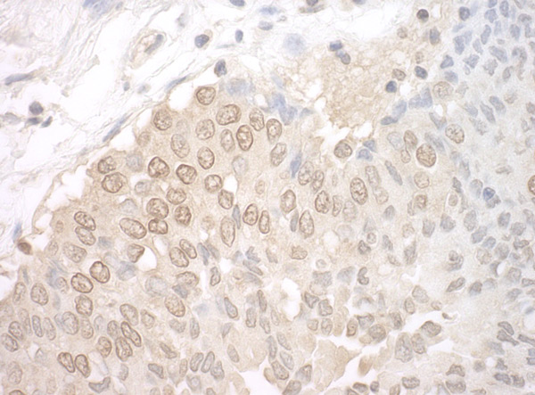 Immunohistochemistry (Formalin/PFA-fixed paraffin-embedded sections) - Anti-UCKL1 antibody (ab95177)