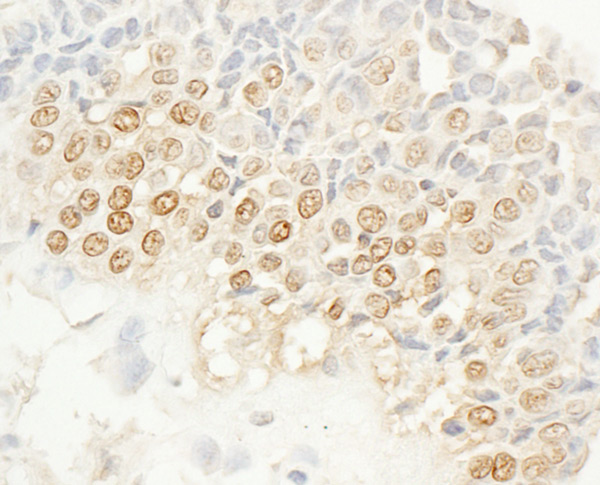 Immunohistochemistry (Formalin/PFA-fixed paraffin-embedded sections) - Anti-NEK4 antibody (ab95189)