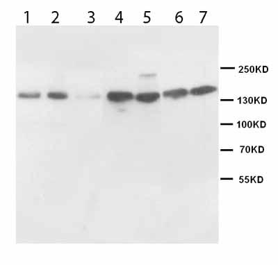 Western blot - Anti-nNOS (neuronal) antibody (ab95436)
