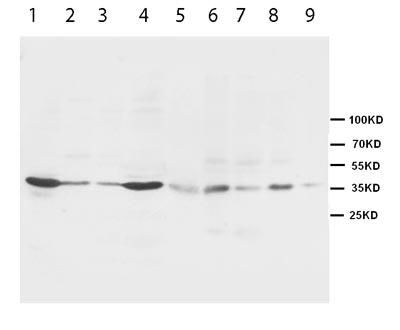 Western blot - Anti-Hex antibody (ab95438)