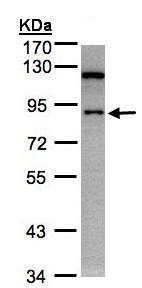 Western blot - Anti-SART1 antibody (ab95957)