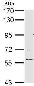 Western blot - Anti-RCBTB2 antibody (ab96047)