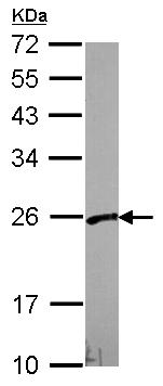 Western blot - Anti-PFDN3 antibody (ab96085)