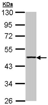 Western blot - Anti-Aminoacylase 1 antibody (ab96098)