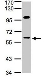 Western blot - Anti-PPP1R16A antibody (ab96118)