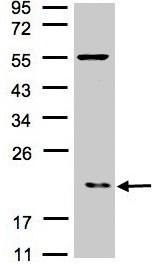 Western blot - Anti-p21-ARC antibody (ab96137)