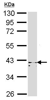 Western blot - Anti-cAMP Protein Kinase Catalytic subunit antibody (ab96186)