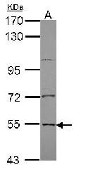 Western blot - Anti-EDC3 antibody (ab96190)