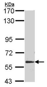 Western blot - Anti-Glypican 5 antibody (ab96209)