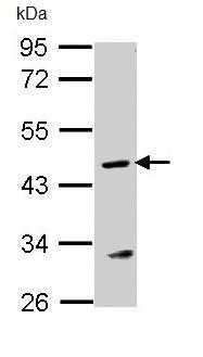 Western blot - Anti-Argininosuccinate Lyase antibody (ab96215)