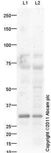 Western blot - Anti-Ephrin B2 antibody (ab96264)