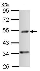 Western blot - Anti-PDSS2 antibody (ab96324)