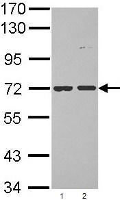 Western blot - Anti-POMGNT1 antibody (ab96353)