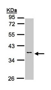 Western blot - Anti-Calsequestrin 2 antibody (ab96387)