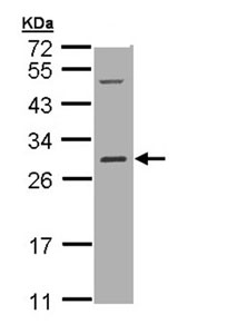 Western blot - Anti-RALB antibody (ab96456)