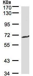 Western blot - Anti-GGT1 antibody (ab96466)
