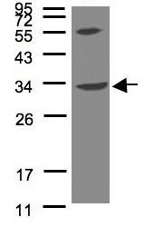 Western blot - Anti-VPS37C antibody (ab96489)